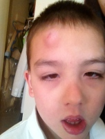 When he banged his head on the dresser wrestling with my sister and didn't even cry!